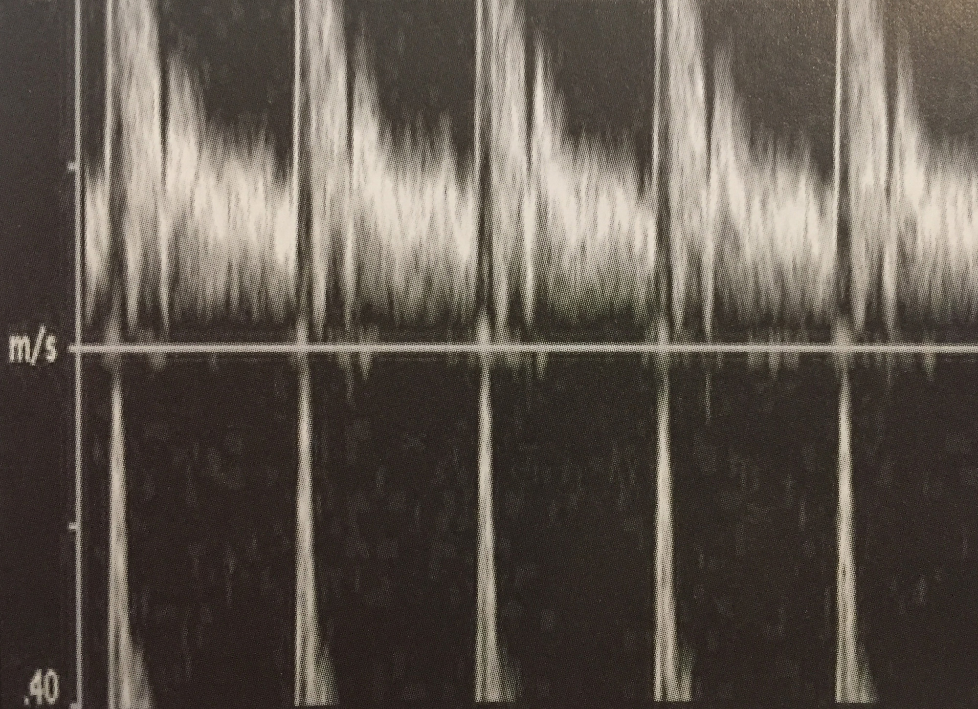 Techniques to Avoid Aliasing: Lower frequency transducer or adjusting scale to its maximum, ESP Inc